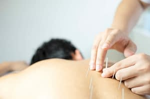 Columbia Gorge Physical Therapy - Acupuncture